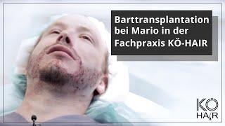 Gambar cover Barttransplantation bei Mario in der Fachpraxis KÖ-HAIR in Düsseldorf