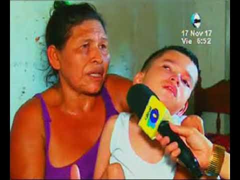 Hidrocefalia en un adolescente