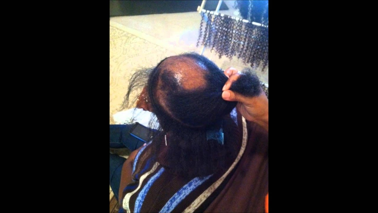 Ms Pks How To Cover Bald Spots With Crochet Braids YouTube