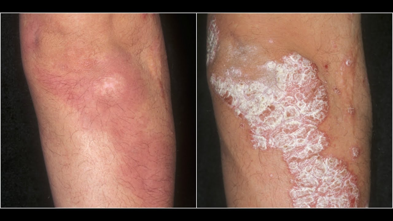 Image result for psoriasis revolution