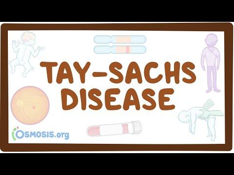 Tay-Sachs Disease - Causes, Symptoms, Diagnosis, Treatment, Pathology