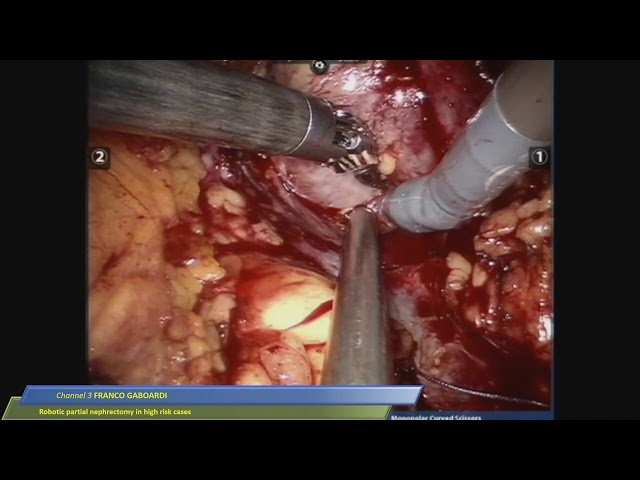 Franco Gaboardi - Robotic Partial Nephrectomy in High Risk Cases
