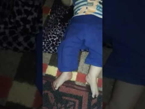 نداء إنساني .. الطفل سالم ذو 7 أشهر يحتاج لعملية جراحية مستعجلة ويحتاج للمساعدة