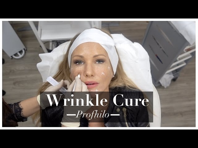 My Anti-Ageing Skin Care Beauty Treatment for Younger Looking Skin PROFHILO  | ADELA KING