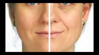 Cosmetic Surgery - Call (732)281-1988 in Toms River, NJ Thumbnail
