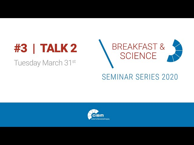 Neuroplastic effects of EEG neurofeedback - CIBM Breakfast & Science 3 Talk 2 by Tomas Ros