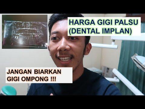 Pengalaman Implan Gigi - Solusi Untuk Gigi Ompong - Harga Implan Gigi