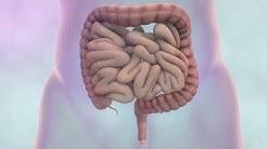 hqdefault - Bowel Cancer Kidney Failure