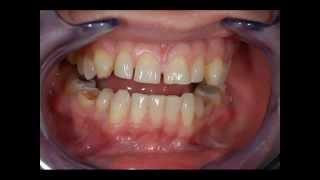Виниры, veneers, люминиры, компониры(Протезирование зубов винирами. Виниры на зубы Харьков. Голливудские виниры. http://sanodent.com.ua/viniry-komponiry-harkov-stomatolog/, 2014-05-26T09:48:47.000Z)