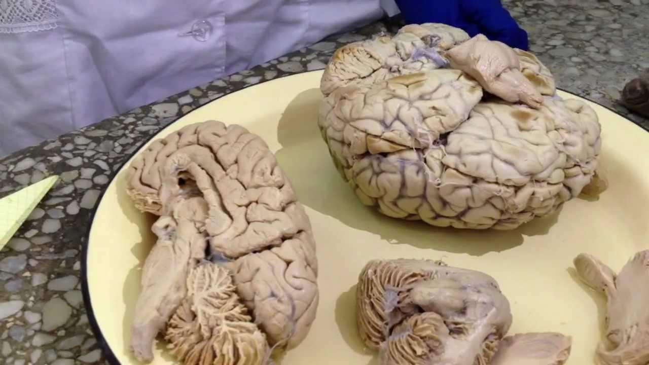 Лизун мозги из сетки - YouTube