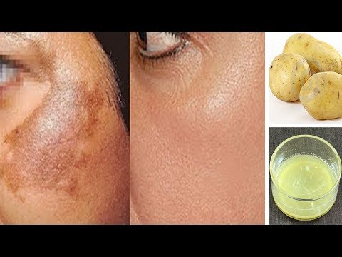 How to Remove Skin Pigmentation, Dark Spots, Acne Scars Easily At Home | Magical Remedy 100% Works