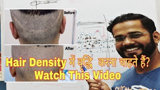 Complete Information of SCALP MICROPIGMENTATION || Get Best Hair Density After HAIR TRANSPLANT 2019