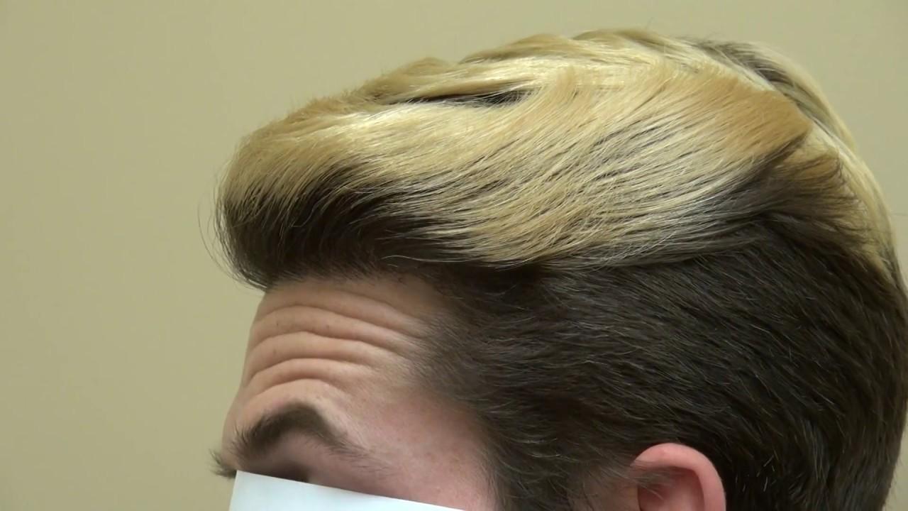 vad kostar en hårtransplantation