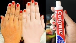 Top 5 Amazing Toothpaste Beauty Hacks That Really Work- Toothpaste Beauty Benefits