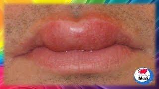 Para inflamados medicina labios