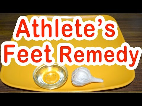 Home Remedy for Athlete's Feet