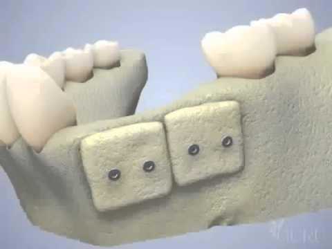 Greffe osseuse d