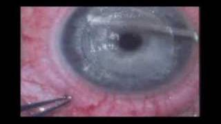 Lasik with IntraLase