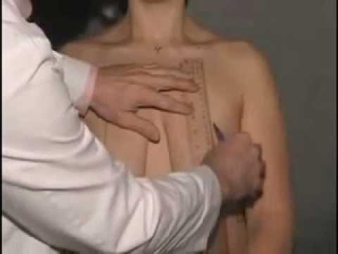 Giải phẫu thẩm mỹ nâng ngực chảy xệ   YouTube