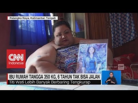 Obesitas, IRT Miliki Berat 350 Kg, 6 tahun Tak Bisa Jalan
