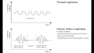 Cheyne-Stokes Respirations (central apnea in CHF or Increased intracranial pressure)