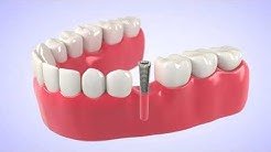 Dental Implants - Bonita Springs, FL - Dr. Frederick Eck