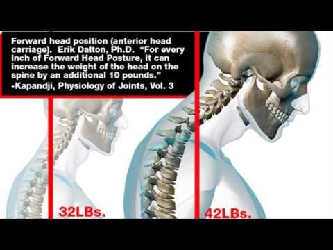 hqdefault - Disc Upper Back Pain