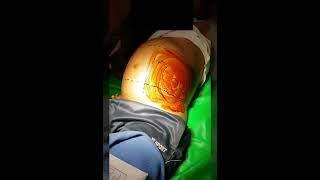 Assyifa remaja berusia 13 tahun divonis menderita Sirosis Hati. Sirosis merupakan penyakit yang meny.