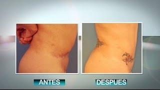 Tummy Tuck Revision Reparacion De Tummy Tuck Lipectomia Secundaria
