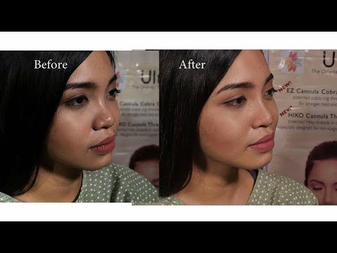 Non surgical nose lift using HIKO threads - YouTube