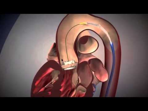Advancing Aortic Stenosis Treatment Using TAVR with Dr. Alan Malki