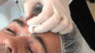Injection de Botox : prix et résultats en vidéo (Clinéance Val d'Oise)