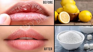 How to Get Rid of Dry Chapped Lips│ In 5 Minutes Get Pink Lips │ Lighten Dark Lips & Get Pink Lips