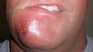 Cellulitis Treatment, Information and Severe Examples   Amazing Medical with Ted