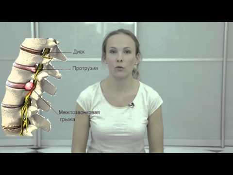 обострение грудного остеохондроза