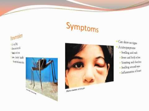 Chagas Disease Slidecast