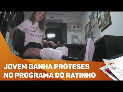 Jovem ganha próteses no programa do Ratinho, fabricadas em Sorocaba - TV SOROCABA/SBT