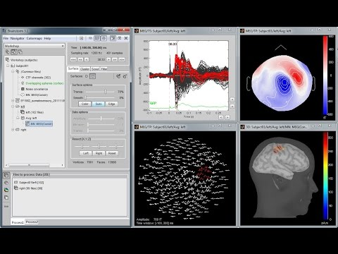 Brainstorm: Imaging neural activity at the speed of brain
