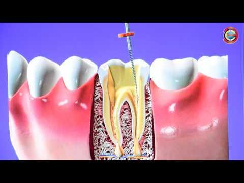 Раскрошился зуб и болит