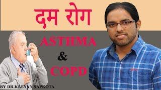 'SMOKE' ले दम रोग निम्त्याउनसक्छ?? /Dr.Kalyan Sapkota //Episode 8