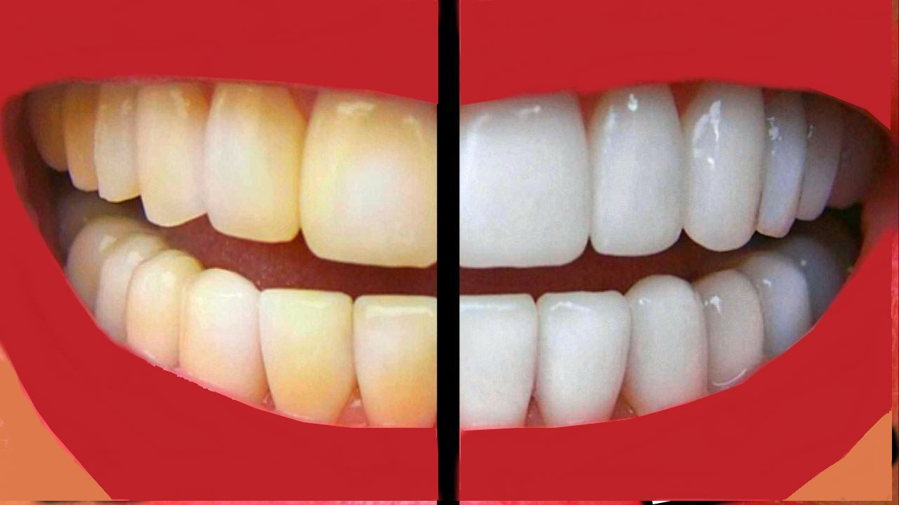 How To Make Your Teeth White At Home In Just A Few Days Youtube