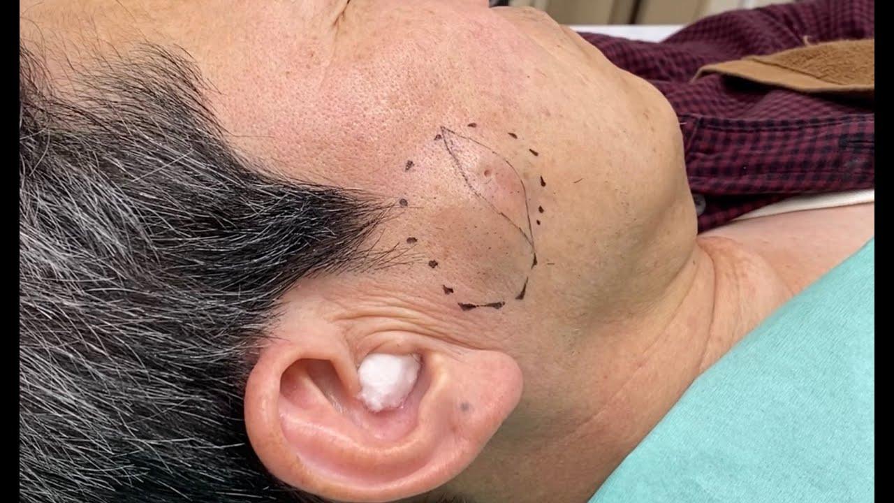 『閲覧注意』顔の粉瘤が感染を繰り返し、瘢痕が強くなったため、切開による手術を行った症例 大阪梅田形成外科クリニック