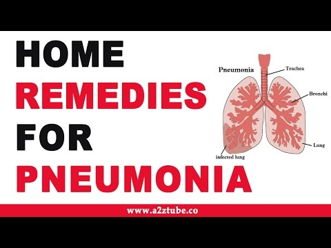 Doctors Express Medical Minute: Is it Bronchitis or Pneumonia? from YouTube · Duration:  2 minutes 27 seconds