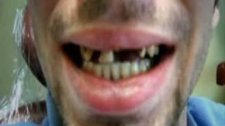 Repeat youtube video La droga mas peligrosa del mundo - crystal - meth - parte 2 de 5
