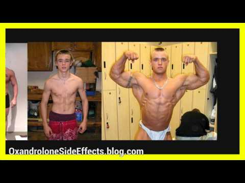 trenbolone ace side effects