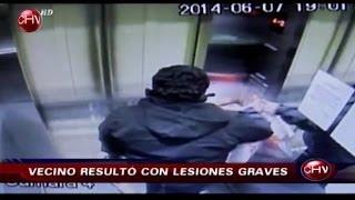 Joven quedó herido tras sufrir este accidente en un ascensor - CHV Noticias
