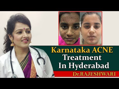 Best Acne Treatment in Hyderabad, India | Karnataka Patient Review | Dr Rajeshwari's Health Care