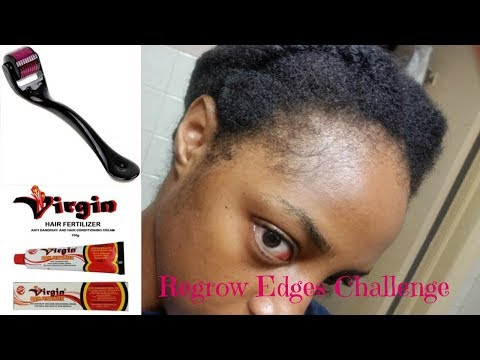 Regrow Edges Challenge | Derma Roller & Virgin Hair Fertilizer | Week 0