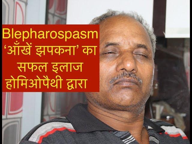 Blepharospasm आँखें झपकना का सफल इलाज होमिओपैथी द्वारा