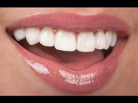 Лечение Кариеса в Стадии Пятна. Восстановление Зубов После Брекетов. Говорит ЭЕСПЕРТ